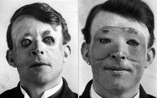 plastic surgery 1917